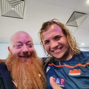 The Murrayfield Beard