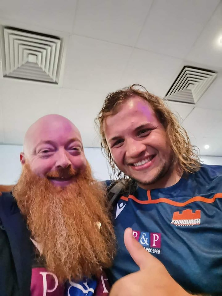 The Murrayfield Beard